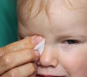 Ögoninflammation barn
