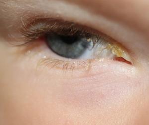 hur länge smittar ögoninflammation hund